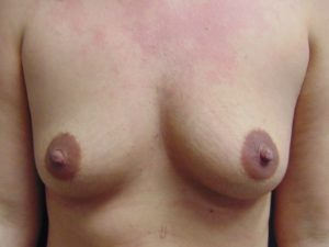 Breast Aug 6 Before