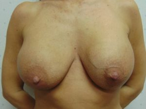 Breast Aug 7 Before