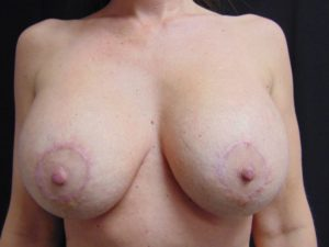Breast Aug 7 After