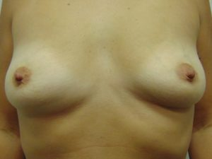 Breast Aug 8 Before