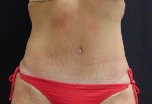 Tummy Tuck 2 After