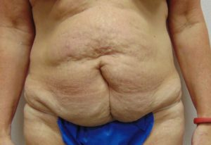 Tummy Tuck 1 Before